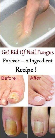 Get Rid of Nail Fungus Forever – 2 Ingredient Recipe – KoKo Fitness - Remedio para hongos - Natural Health Remedies, Natural Cures, Natural Healing, Herbal Remedies, Natural Treatments, Natural Foods, Natural Beauty, Holistic Healing, Natural Oil