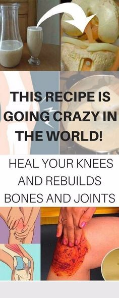 Sometimes the pain in the knees, bones, and joints is the main reason for being incapable of finishing even the simplest daily tasks. But you should not be worried because there is a highly effecti…
