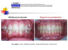 STUDIO DENTISTICO BALESTRO Casi clinici ortodontici http://www.studiodentisticobalestro.com/2017/12/affollamento-dentale.html