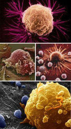 SEM Microscopy: 32 Visions Of A Miniature World | WebUrbanist