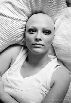 I only wish I looked this good when I was bald! Bald women have got to be the sexiest women. Bald Head Women, Regrow Hair Naturally, Bald Hair, Hair Regrowth, Breast Cancer Awareness, Hair Loss, Her Hair, Beautiful Women, Hair