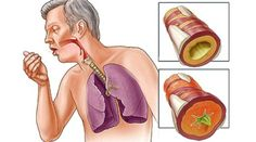 Watch This Video Sensational Natural Remedies for Chest Congestion Relief Ideas. Captivating Natural Remedies for Chest Congestion Relief Ideas. Natural Cough Remedies, Cold Remedies, Natural Cures, Herbal Remedies, Health Remedies, Asthma Relief, Congestion Relief, Chest Congestion Remedies, Flu