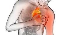 Infarto agudo del miocardio, un problema de salud pública