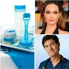 Did you know Angelina Jolie uses micro needles to address fine lines & wrinkles? Yep. And Dr. Oz said it's the only way to get the results you want in a noninvasive way!  Luckily, Rodan & Fields offers the AMP MD roller system so you can get awesome results  at home too!