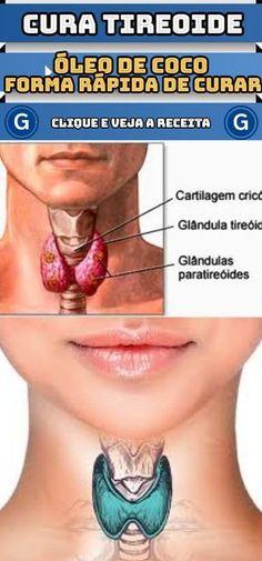 Aprenda a curar a tireoide de forma rápida usando o óleo de coco #dicas #caseiras #cura #da #tireoide #usando #óleo #coco #receita #receitas