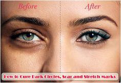 How to Cure Dark Circles, Scar and Stretch Marks