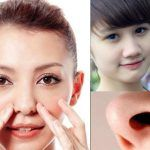 Phẫu thuật thu gọn cánh mũi giá bao nhiêu là rẻ hiện nay?