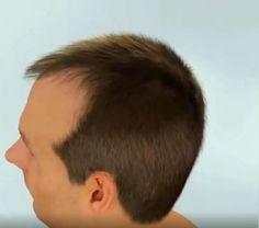 Gesundheit und Kosmetik Health Hair Growth Laser Comb Buy diamonds Article Body: Diamond is one of t Natural Hair Growth, Natural Hair Styles, Long Hair Styles, New Hair, Your Hair, Laser Comb, Silky Smooth Hair, Rides Front, Brittle Hair