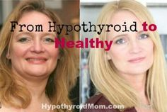 From hypothyroid to healthy