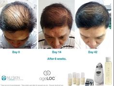Worried about losing your hair? It only takes a couple of months to get back your confidence using the Nuskin Hair Loss System. To find out more, check mariebogroff.nsproducts.com