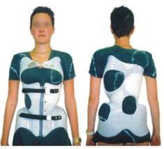 Corrective Spinal Cheneau Brace