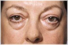 Face Exercise: How to do a Complete Facial Workout! Face Lift Exercises, Hair Loss Women, Facial Massage, Homemade Skin Care, Facial Care, Tips Belleza, Hair Health, Easy Workouts, Beauty Skin
