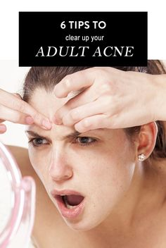 6 tips on how to clear up your ADULT ACNE!