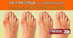 Ты знаешь от чего появляется, так называемая «косточка» (вальгусная деформацияпальца стопы)? Тесная обувь, питание, плоскостопие…. Этот перечень можно продолжать долго и по сути — мы все находимся в зоне риска. Если у тебя возникла такая проблема — не стоит паниковать. Хирургическое вмешательство — не единственны вариант решения проблемы! У народной медицины есть свои методы. Как …