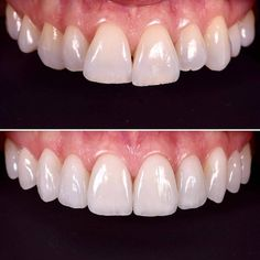 all combined in a very tricky case. Life changing for this patient that attempted to fix her lateral incisor agenesia 3 times. Now she is finally happy. Great ceramic work by Veneers Teeth, Dental Veneers, Lente Dental, Dental Photos, Dental Photography, Beautiful Teeth, Dental Office Decor, Restorative Dentistry, Dental Laboratory