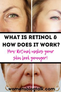 Retinol helps to increase cell growth and therefore it can help to improve skin cells on your face. It is best used as a topical cream if you are looking to reduce the signs on aging. Anti Aging Tips, Anti Aging Skin Care, Natural Skin Care, What Is Retinol, Cell Growth, Look Younger, How To Treat Acne, Anti Aging Cream, Skin Problems