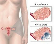 Ovarian cysts occur as growths full of fluid in the ovaries of a woman. Either one or both ovaries could be affected by cysts. Usually cysts in the ovaries are Ovarian Cyst Treatment, Ovarian Cyst Symptoms, Uterine Fibroids, Ovarian Tumor, Natural Health Remedies, Natural Cures, Natural Healing, Home Remedies, Holistic Remedies