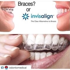 #Repost @odontomedical with @repostapp.  #Repost @rauseortodoncia with @repostapp.  Visítame y descubre esta excelente alternativa! #Rauseortodoncia #Aesthetic #UCV #SVO #AAO #WFO #UAT #smile #dentistry #odontología #orthodontics #Venezuela #caracas #04marzo #Health #salud #braces #Picoftheday #Invisalign Porque sonreir es un placer!!!!! En @odontomedical #previacita #02812819385 #lecheria INVISALIGN es una excelente alternativa para la corrección de maloclusiones sin el uso de brackets. El…