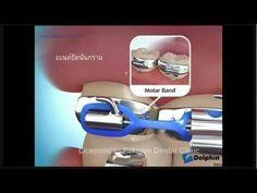 dental braces& orthodontics intruments
