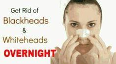 Effective Ways to Remove Blackhead Overnight.jpg