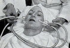 """""""Esta máquina de sucção dos anos 30 era feita com pontas de vidro, uma mangueira de borracha e uma bomba de vácuo, para manter a pele lisa e sem manchas. © London Media"""" Fonte: http://obviousmag.org/"""