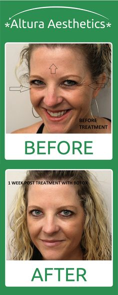 We used Botox to remove some this person's lines around her eyes and forehead.