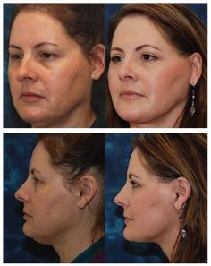 Double Chin Treatments: How To Purge A Second Chin With Facial Toning