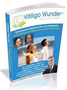 Vitiligo-Wunder - http://vitiligo-wunder.com/vitiligo-wunder/