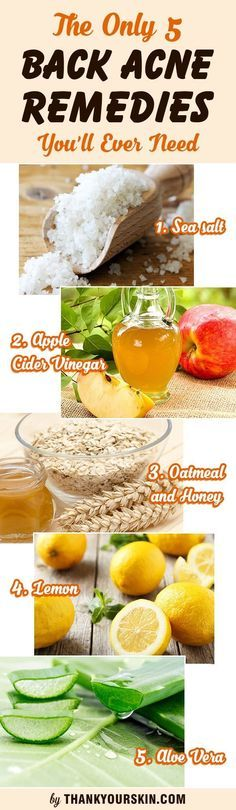 The Only 5 Back Acne Remedies You'll Ever Need. How to get rid of Back acne fast and overnight with natural treatments and DIY recipes using baking soda and ACV. How To Get Rid Of Back Acne Overnight Back Acne Treatment, Natural Acne Treatment, Skin Treatments, Baking Soda Acne Scars, Baking Soda For Acne, Baking Soda Beauty Uses, Baking Soda Uses, Back Acne Remedies, Natural Remedies