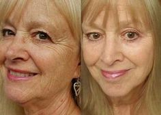 Do Facelift Exercises Work? Do The Face Techniques Perform To Age-Regression Expectations?