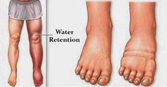 water retention causes nd natural remedies