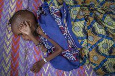 Raihanatou ha tre anni e pesa solo 6,7 chili. E' una dei tanti piccoli rifugiati che sono arrivati in Camerun dopo essere scappati dalle violenze nella RCA. Prima di raggiungere il confine ha passato un mese nascosta tra i cespugli con sua madre e tre fratelli, mangiando radici e foglie. Ora è ricoverata nell'ospedale di Batouri, dove è stato allestito un centro di nutrizione per lei e altri 100 bambini, anche se i letti sono solo 12.  foto: © Frédéric Noy / Cosmos per HCR