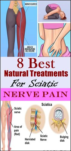 Back pain treatment exercises for sciatica and lower back pain, nerve pain in leg sciatic nerve and - Top Trends Siatic Nerve, Nerve Pain, Sciatica Stretches, Sciatic Pain, Sciatic Nerve Relief, Yoga Exercises, Natural Treatments, Back Pain, Thighs