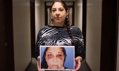 Sabrina, holding a photograph of the injuries inflicted by her former partner, Ian Hopkins, who was sentenced to just two years in jail for the attack.
