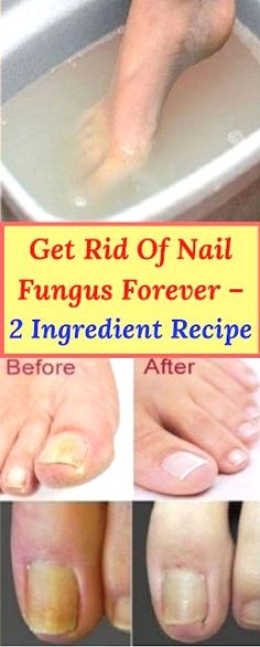 Get Rid Of Nail Fungus Forever – 2 Ingredient Recipe A fungal nail occurs when a fungus attacks a toenail, a fingernail or the skin under the nail. Any part of the body can be affected by the fungal infections. Natural Home Remedies, Natural Healing, Natural Oil, Natural Foods, Holistic Healing, Infection Fongique, 2 Ingredient Recipes, Nail Fungus, Toe Fungus