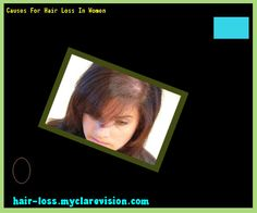 Causes For Hair Loss In Women 140703 - Hair Loss Cure!