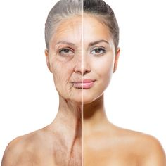 It's more than possible to give yourself a non-surgical facelift yielded by stimulating your face with facial reflexology and face gymnastics. Facial toning exercises lift the face skin with great results for a long-term energy facelift without surgery. Facial Yoga Exercises, Face Lift Exercises, Fitness Exercises, Facelift Without Surgery, Sagging Face, Natural Face Lift, Operation, Face Yoga, Face Wrinkles