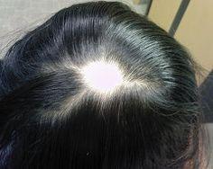 4. 면도를 하면 굵은 모가 자라나나요?      면도를 하고 머리가 다시 나기 시작하여 짧은 상태에 있을 때에는  모발이 더 빳빳하게 느껴지므로 더 굵은 것처럼 느껴지는 것뿐이고 실제로 더 굵게 나오는 것은 아닙니다.