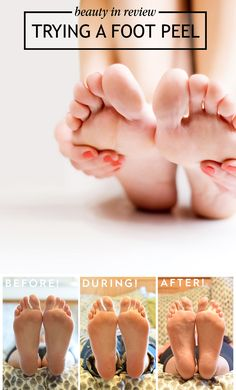 Gross But So Good: The Baby Foot Peel