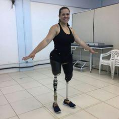 Ela perdeu as pernas num acidente domestico com 1 ano de idade