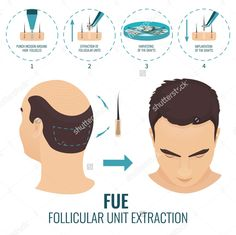 Facts about #Hair #Transplant Surgery Procedure, Risks and Care Read Blog Post On #WordPress #hairtransplantationworld