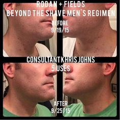 Rodan + Fields Beyond the Shave Regimen brings the perfect products together for men. Even though all of the regimens can benefit men or women, this is a great option to check out the products! (Tony uses his daily!)