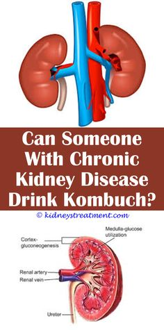 Mind Blowing Cool Ideas: Autosomal Dominant Kidney Disease kidney disease lab values.How Many Stages Are There To Chronic Kidney Disease polycystic kidney disease diet recipes.Arizona Kidney Disease And Hypertension Center Llc. Stage 3 Kidney Disease, Causes Of Kidney Disease, Kidney Disease Symptoms, Polycystic Kidney Disease, Dialysis Humor, Kidney Dialysis, Kidney Cancer, Kidney Detox, Kidney Cleanse