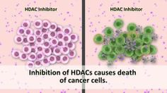 """New research using HDACs in IBC - for example use of """"Entinostat"""" to sensitize Herceptin-resistant cells to Herceptin and Lapatinib. Other trials have investigated the combination of Entinostat with Exemestane in progressing ER+ breast cancer (after non-steroidal aromatase inhibitor). Watch out for more ideas!"""