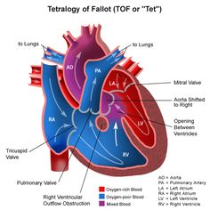 Anatomy of a heart with tetralogy of Fallot