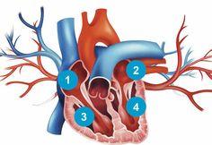 Miocardiopatia dilatada impede o bombeamento eficaz de sangue para o corpo. Veja…