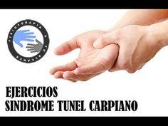 Sindrome del tunel carpiano, fisioterapia y tratamiento para aliviar el dolor - YouTube