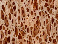 Bone tissue (imaged using a scanning electron microscope [SEM])