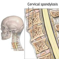Cervical radiculopathy or pinched nerve in the neck causes pain how to recognize symptoms of cervical spondylosis publicscrutiny Images