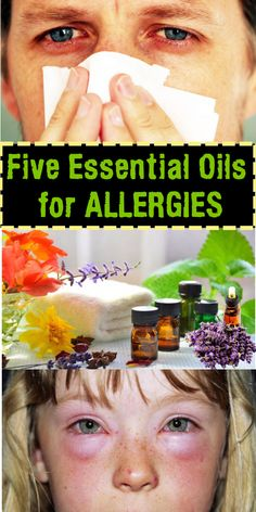 Five Essential Oils for Allergies